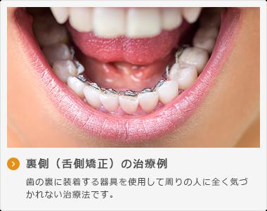 裏側(舌側矯正)の治療例 歯の裏に装着する器具を使用して周りの人に全く気づ かれない治療法です。